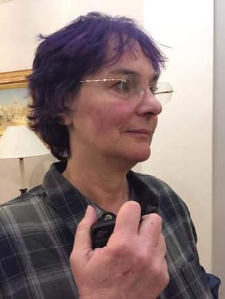 Maria MacLachlan, bruised